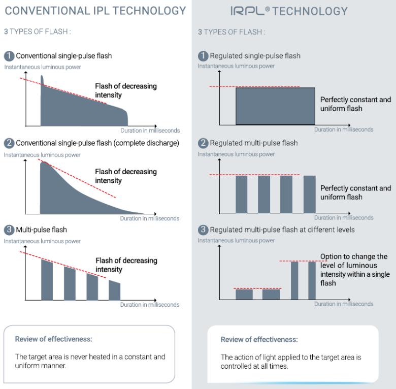 conventionele vs IRPL Technologie